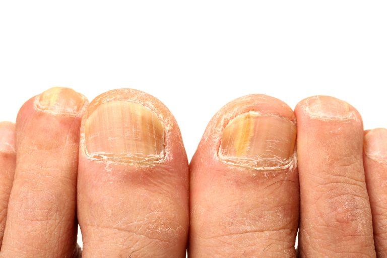 gula naglar på fötterna